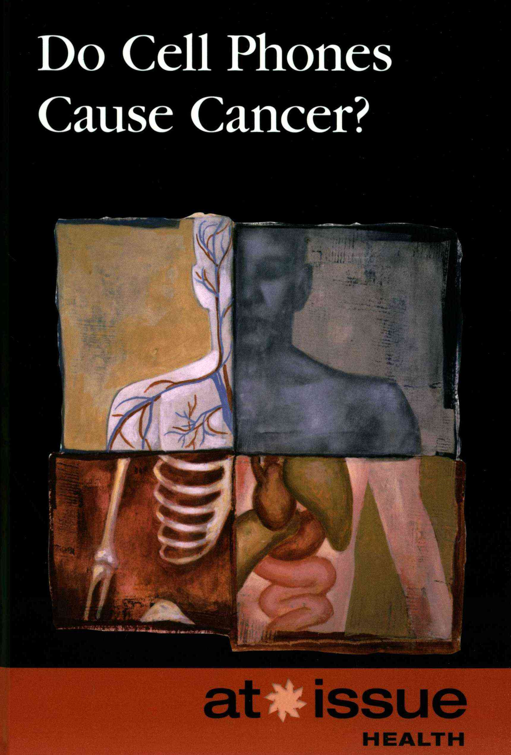 Do Cell Phones Cause Cancer? By Greenhaven Press Editor (EDT)